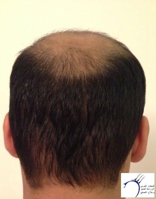 www.hairarab.com8dae