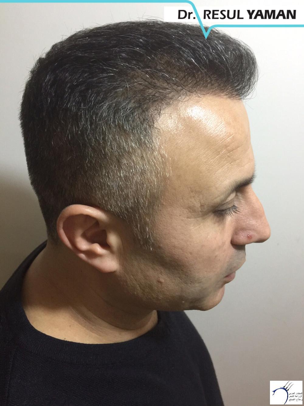 نتيجة السيد Emin Demir زراعة www.hairarab.com8ede