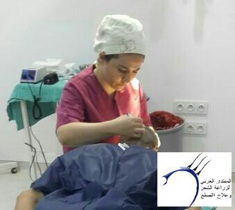 تجربة زراعة الشعر الاخصائي محمد www.hairarab.com8ee5