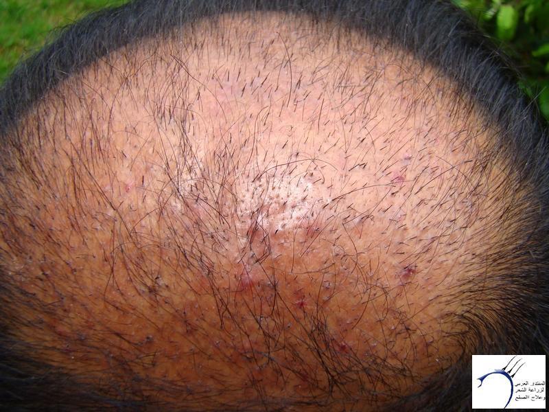 تجربتي لزراعة الشعر تركيا الدكتور www.hairarab.com8f02