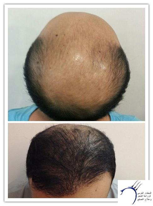 www.hairarab.com8f55