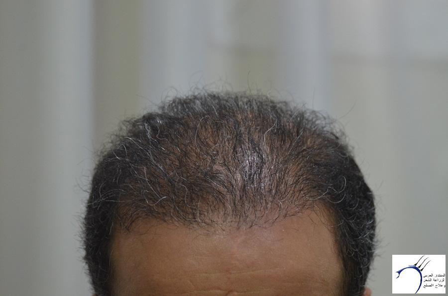 اليكم نتيجة زراعتي الاولى أشهر www.hairarab.com8f65