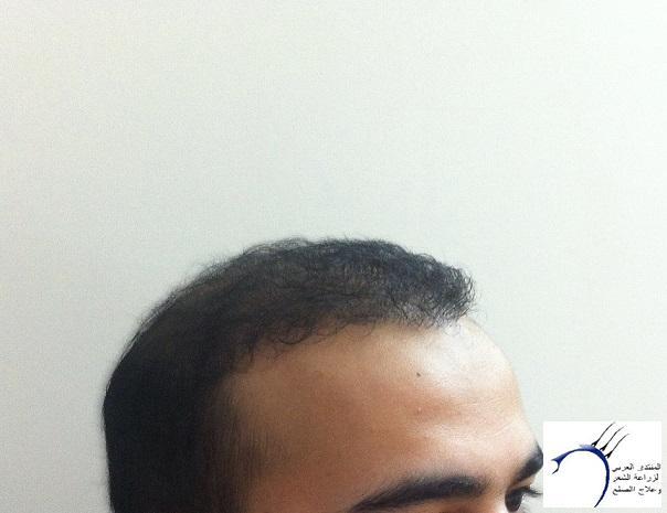www.hairarab.com8f6f