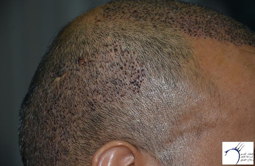 اليكم نتيجة زراعتي الاولى نتيجة www.hairarab.com9049