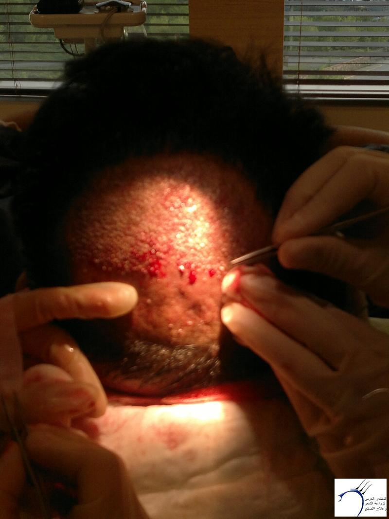 تجربتي لزراعة الشعر تركيا الدكتور www.hairarab.com9221