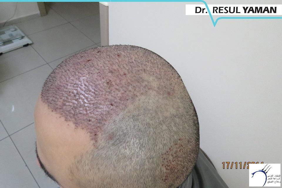 4800 بصيلة واحد-الدكتور رسول يمان www.hairarab.com94e2
