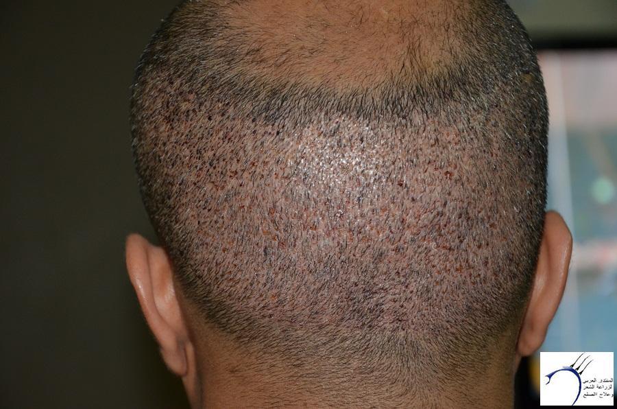 اليكم نتيجة زراعتي الاولى نتيجة www.hairarab.com9545