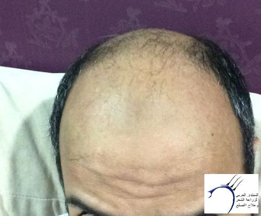 www.hairarab.com95c4