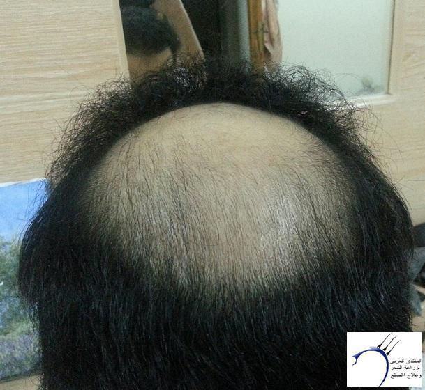 (تحديث الزراعة) ...ستار www.hairarab.com962d