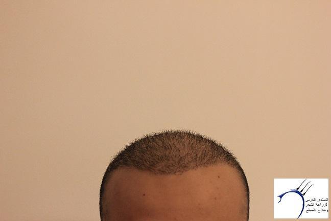 www.hairarab.com976b