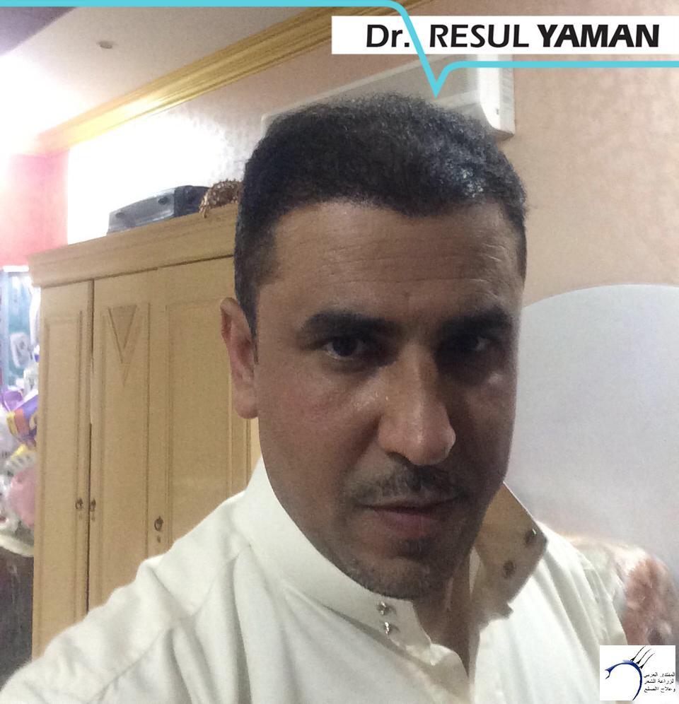 (:سيلفيي) الدكتور www.hairarab.com9877