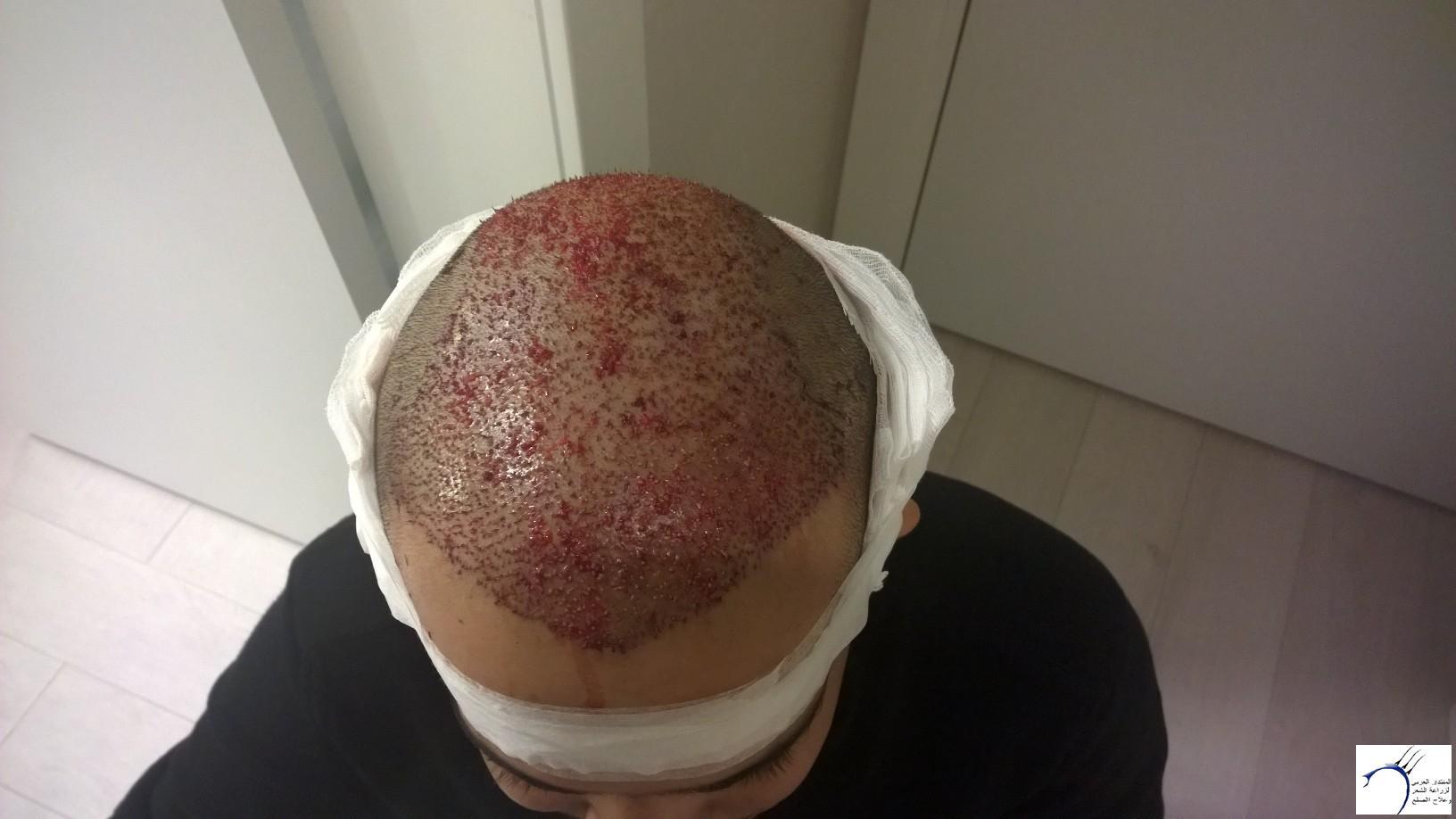 الدكتور www.hairarab.com988c