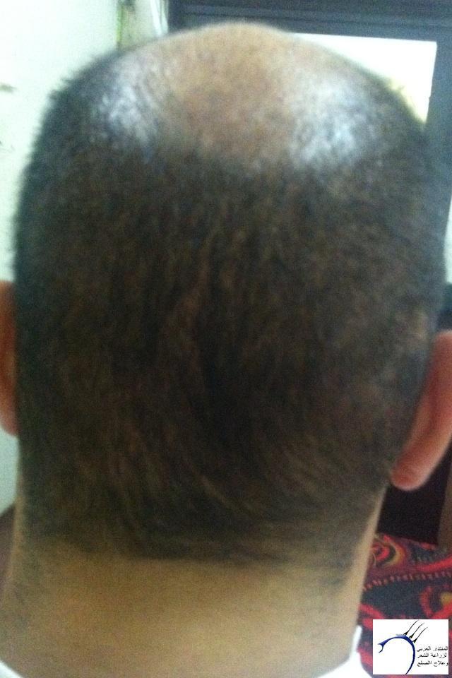 (التحديث الأول شهرين تفاصيل زراعتي www.hairarab.com989c
