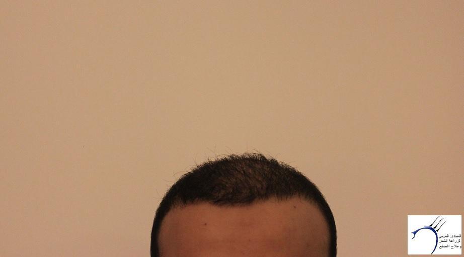 www.hairarab.com98aa