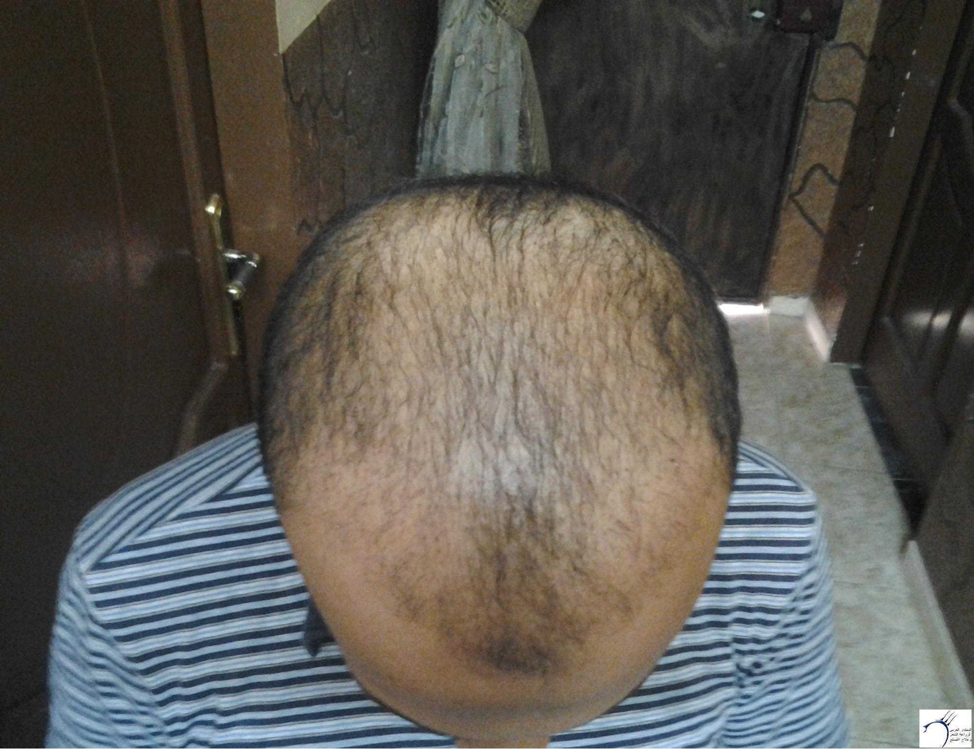الدكتور (تحديث السابع) www.hairarab.com98d8