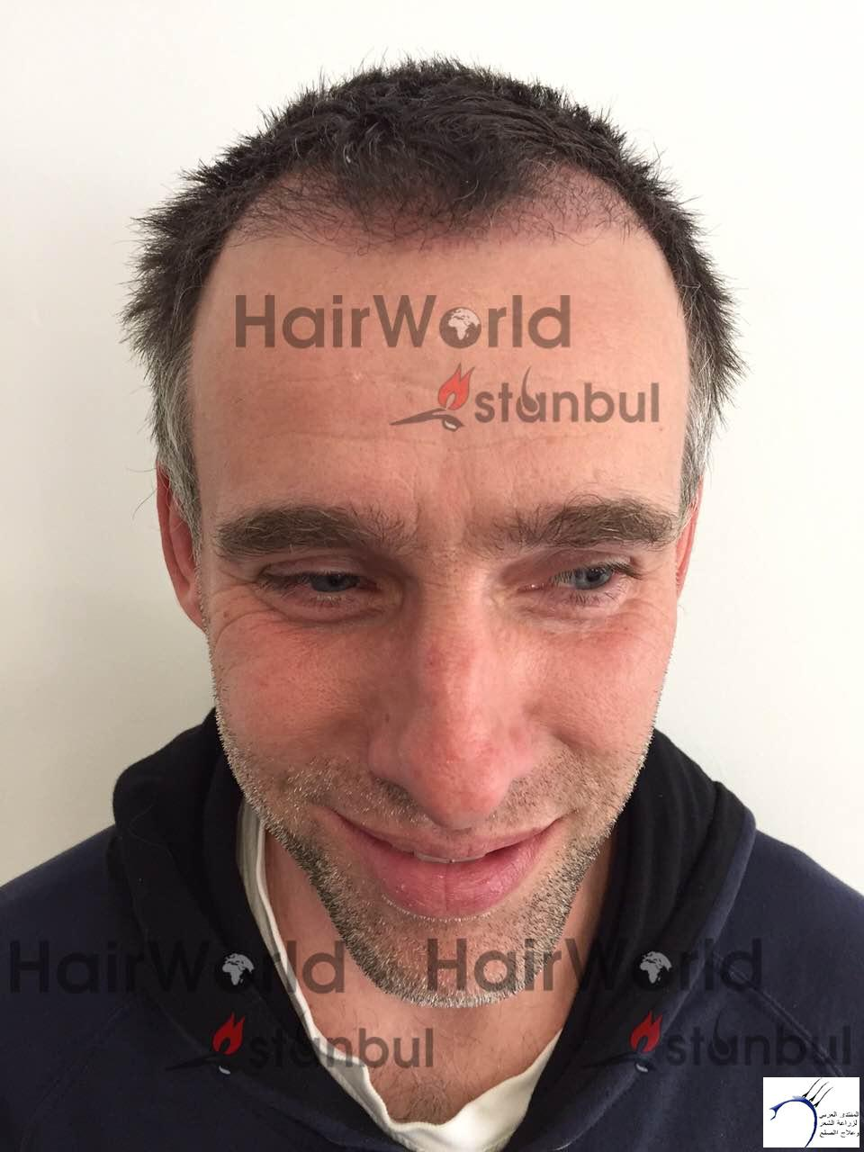 التجارب تركيا(مركز الهولندي) www.hairarab.com9a4a