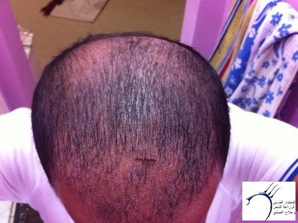 www.hairarab.com9a69