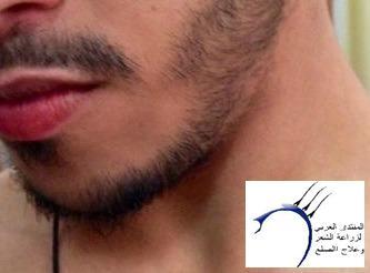 تجربتي بالصور بخاخ ريجين للذقن www.hairarab.com9b83