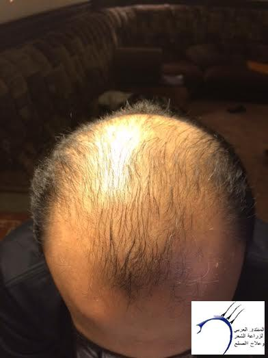 تجربتي محمد قوتشلو ...الشهر العاشر www.hairarab.com9bde
