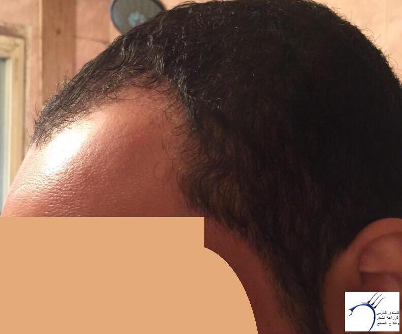www.hairarab.com9e5d