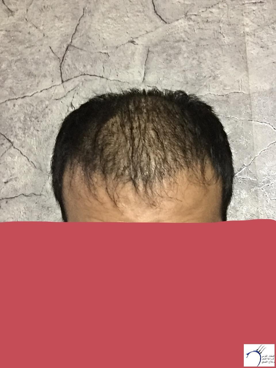 تجربتي رويال تحديث الشهر الرابع www.hairarab.com9e93