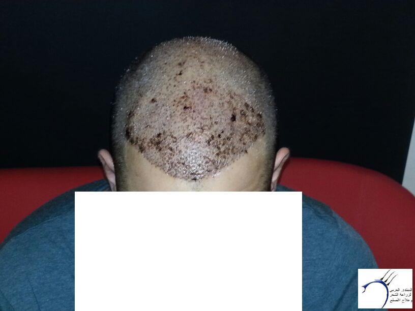 www.hairarab.com9eea