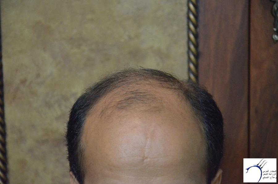 اليكم نتيجة زراعتي الاولى نتيجة www.hairarab.com9f0d