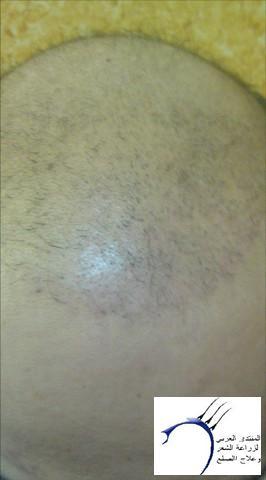 www.hairarab.com9f67