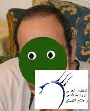 تجربتي الزراعه مركز ادمة دكتور www.hairarab.coma24d