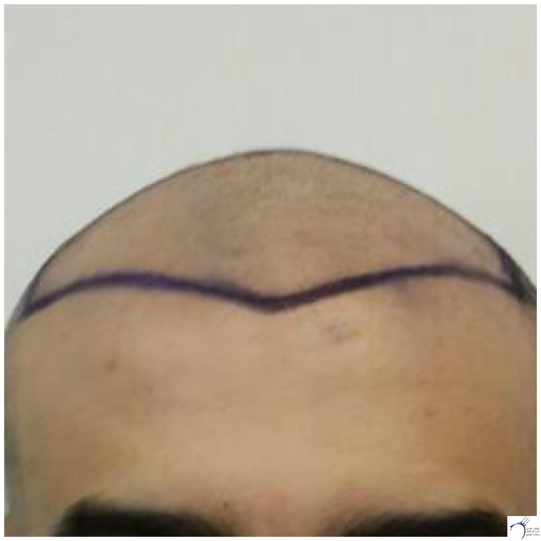 تجربتي محمد قوتشلو ...الشهر العاشر www.hairarab.coma482