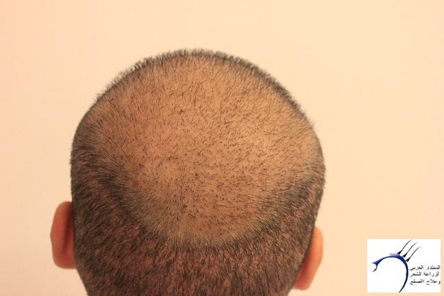 www.hairarab.coma6b7