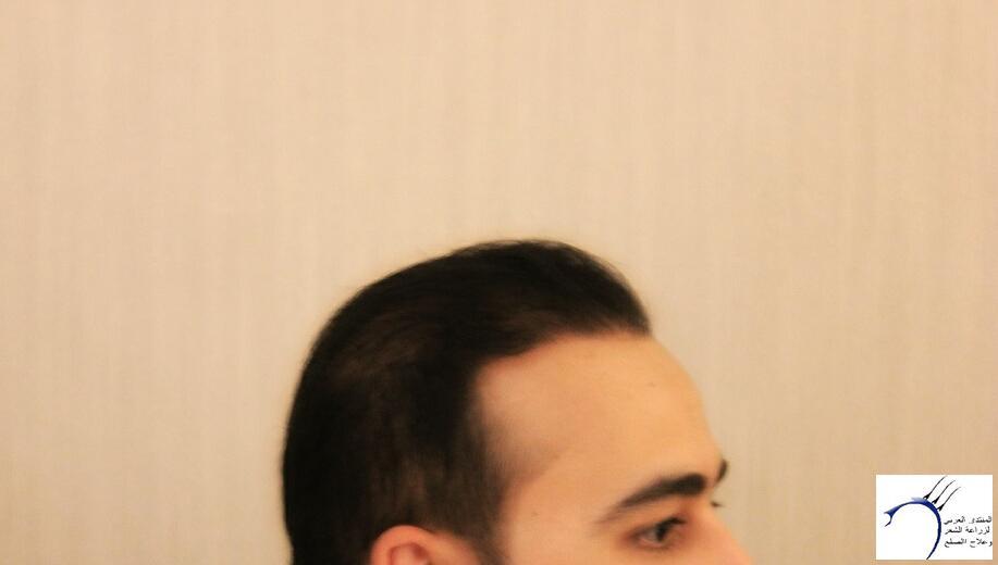 www.hairarab.coma748
