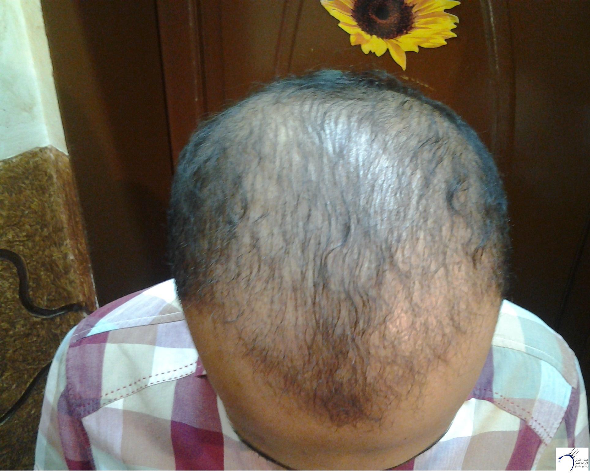 الدكتور (تحديث السابع) www.hairarab.coma787