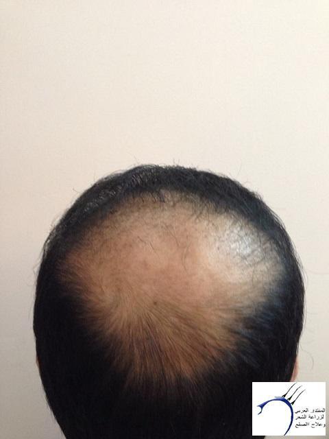 www.hairarab.coma998