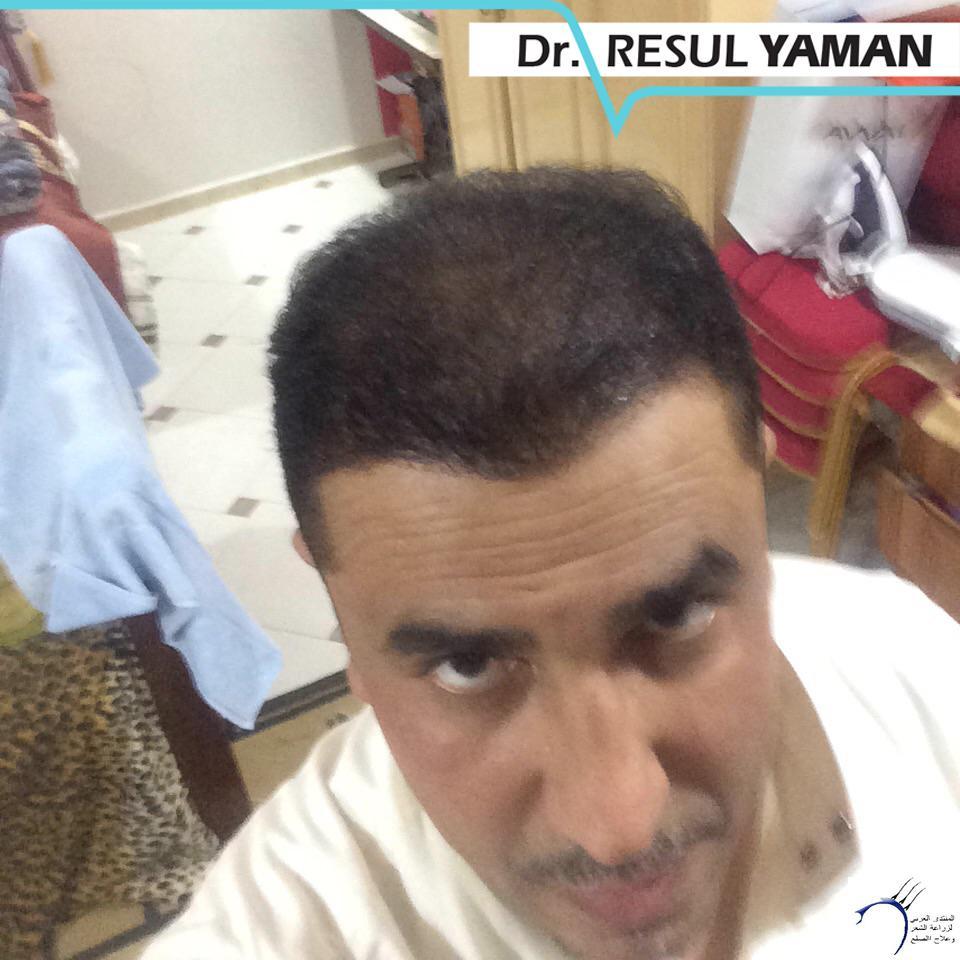 (:سيلفيي) الدكتور www.hairarab.coma9b7