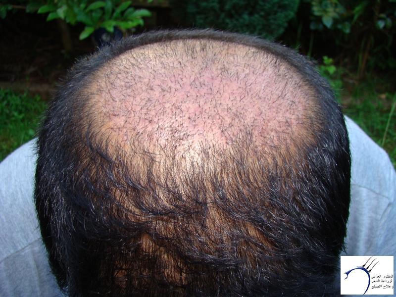 تجربتي لزراعة الشعر تركيا الدكتور www.hairarab.coma9da