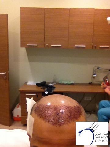 أقدم تجربـتي لزراعة الشعر مركـز www.hairarab.comaafb