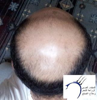 تجربتي الدكتور سركان Medhir نركيا www.hairarab.comacb9
