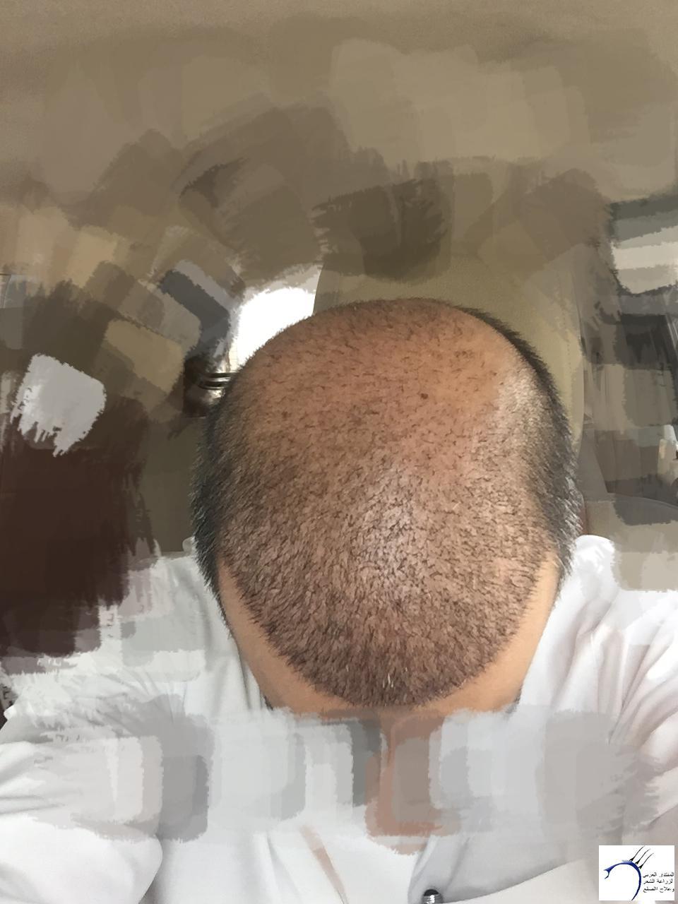 تقرير كامل بالصور زراعة الشعر