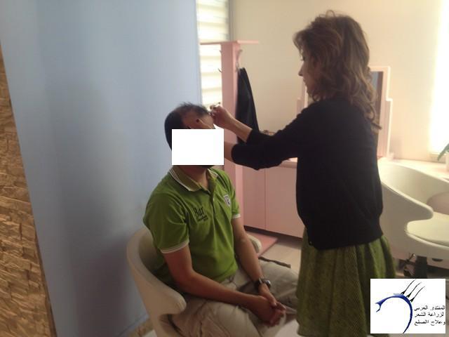 أقدم تجربـتي لزراعة الشعر مركـز www.hairarab.comad82