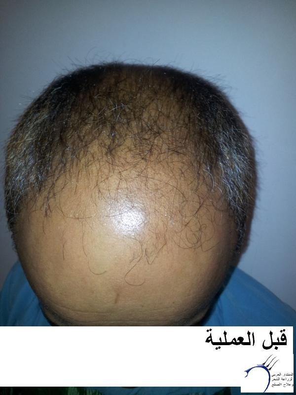 زراعتي الدكتور محمد جوتشلو- وكما www.hairarab.comadbc