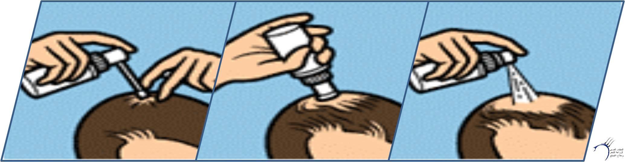 دواء المينوكسيديل www.hairarab.comade4