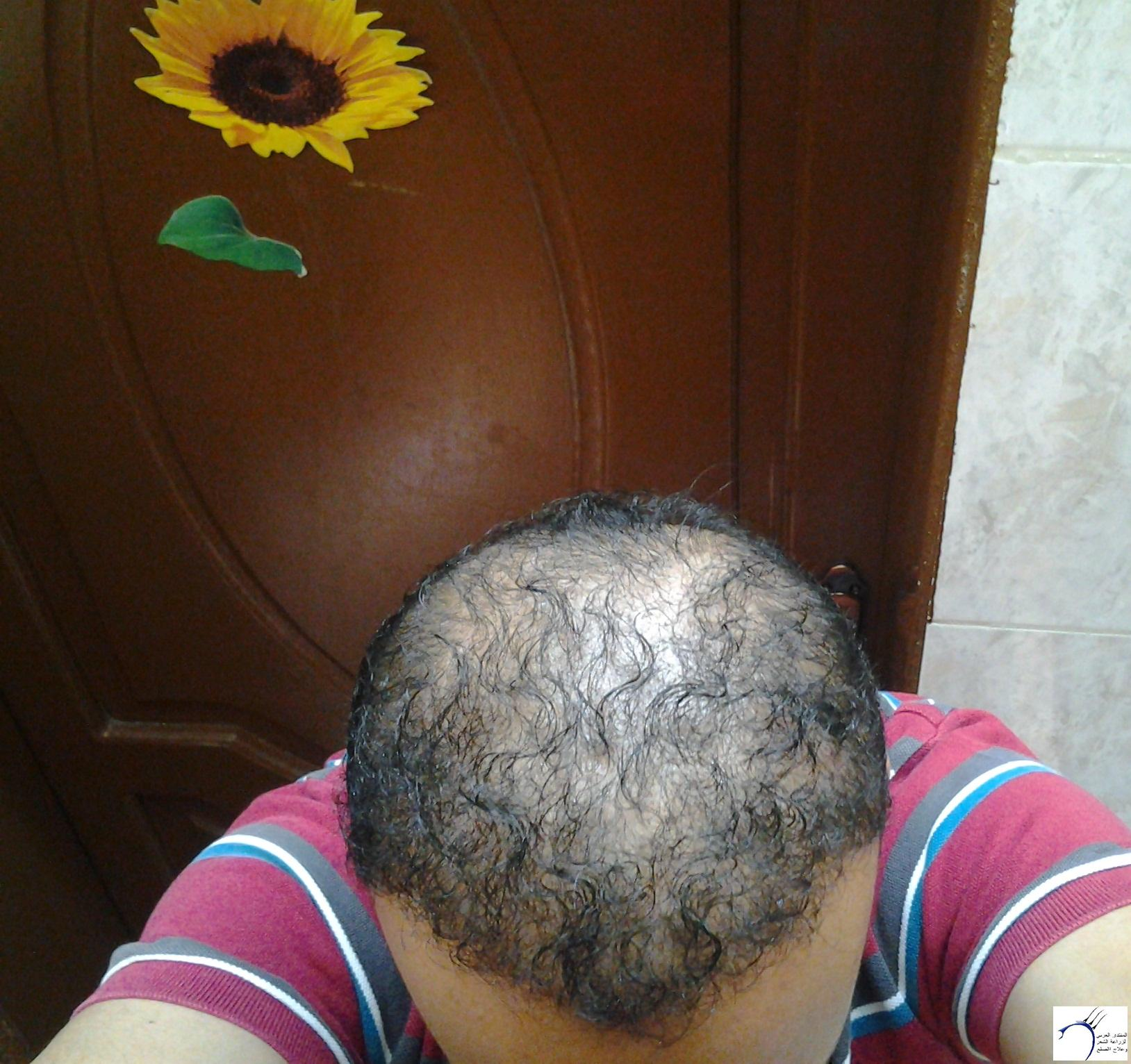 الدكتور (تحديث السابع) www.hairarab.comafa9