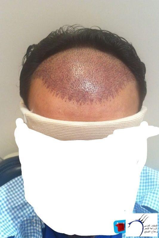 (تجربتي الدكتور العيادات العالميه....تم www.hairarab.comb04d