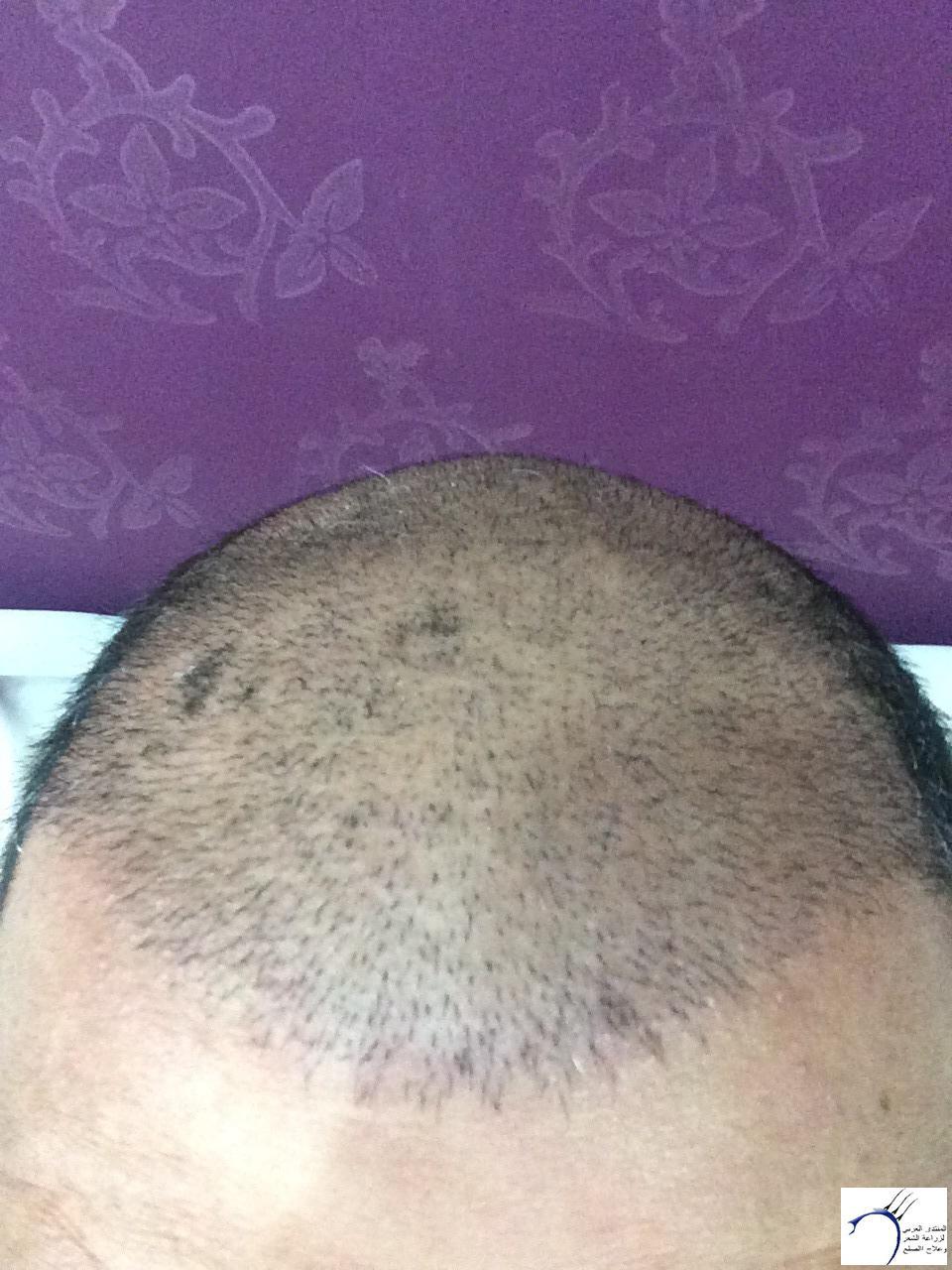 www.hairarab.comb0fb
