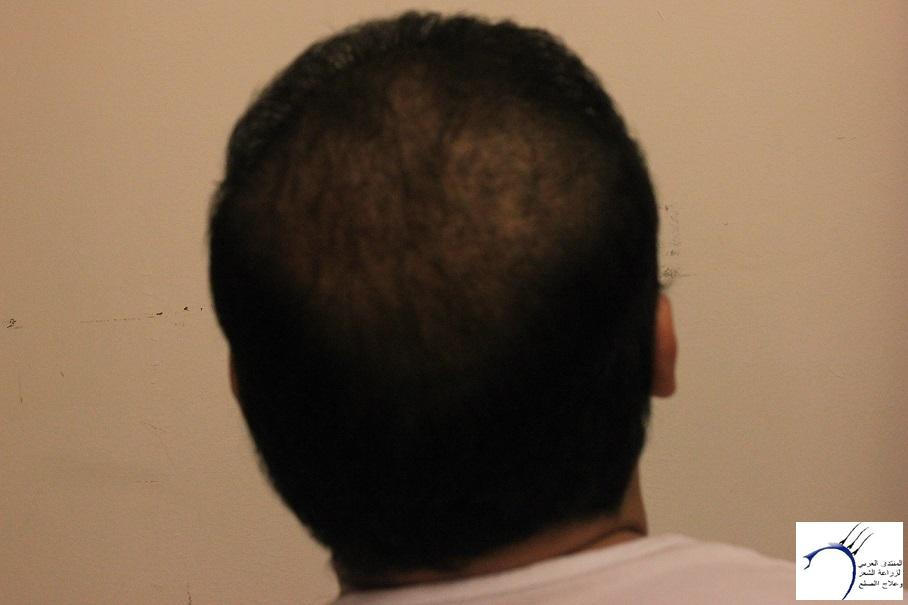 www.hairarab.comb134