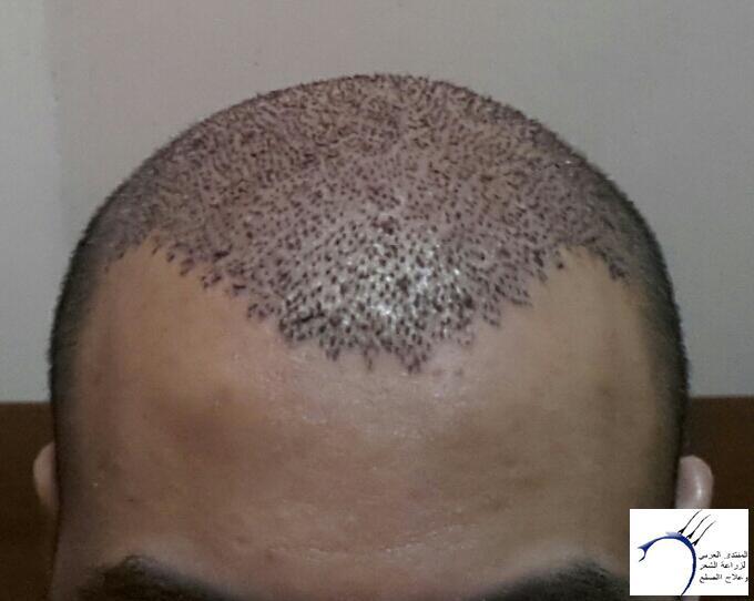 تجربتي مستشفى اتوجنميد التحديث واضافة www.hairarab.comb137
