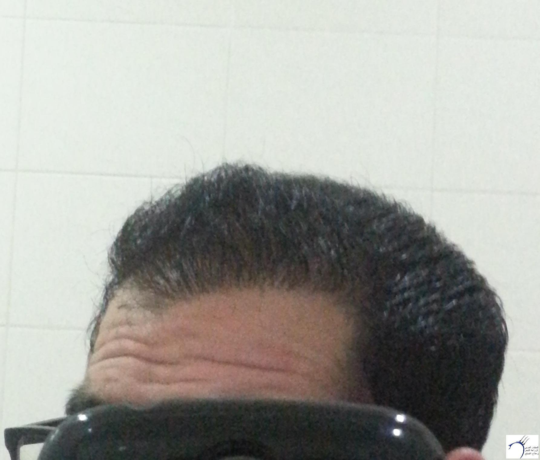 www.hairarab.comb3f0