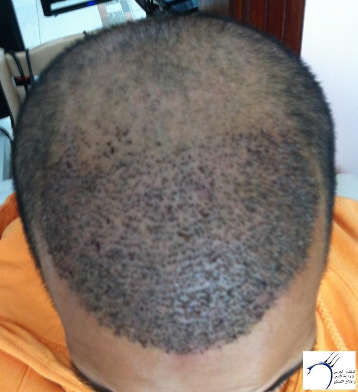 تحذير وتنويه مركز ستار www.hairarab.comb4cb