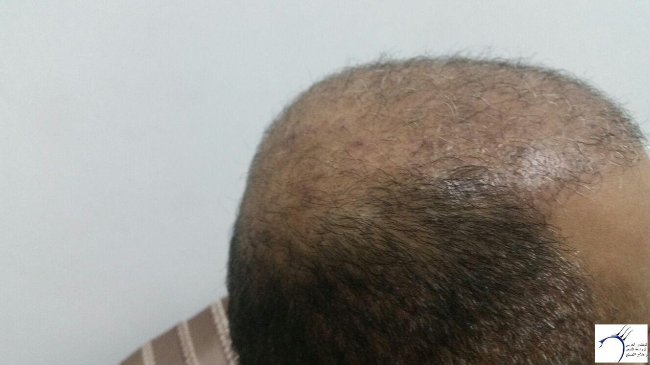 تجربتي لزراعة الشعر بمركز هاير www.hairarab.comb4eb